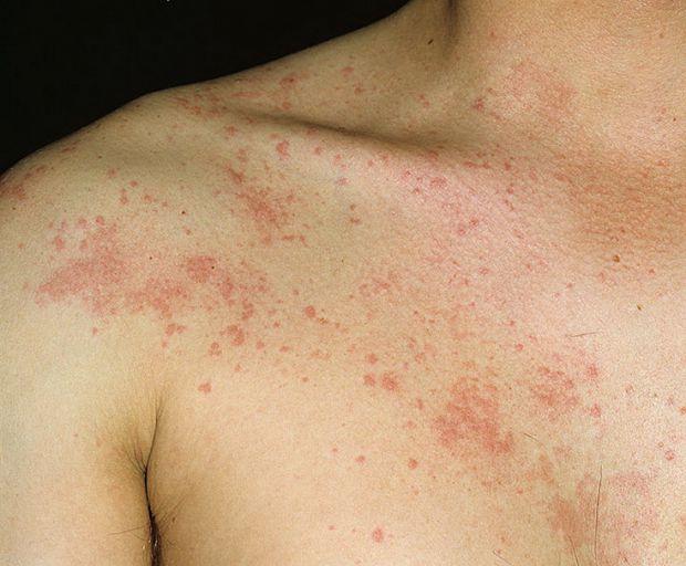 Під кропив'янкою мається на увазі безліч хвороб, що характеризуються появою сверблячих пухирів з чітко обмеженими краями, пухирі можуть бути розміром