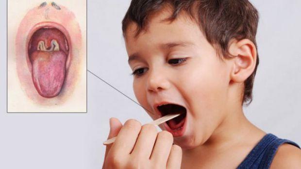 Дифтерія - найнебезпечніша інфекція, що викликає запальний процес у слизовій дихальних шляхів і сильну інтоксикацію всього організму.