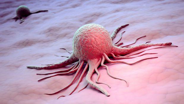 Дослідження показало, що розвиток раку підшлункової залози прискорюється через вплив стресу. Пригнічують гормони стресу ліки з категорії бета-блокатор