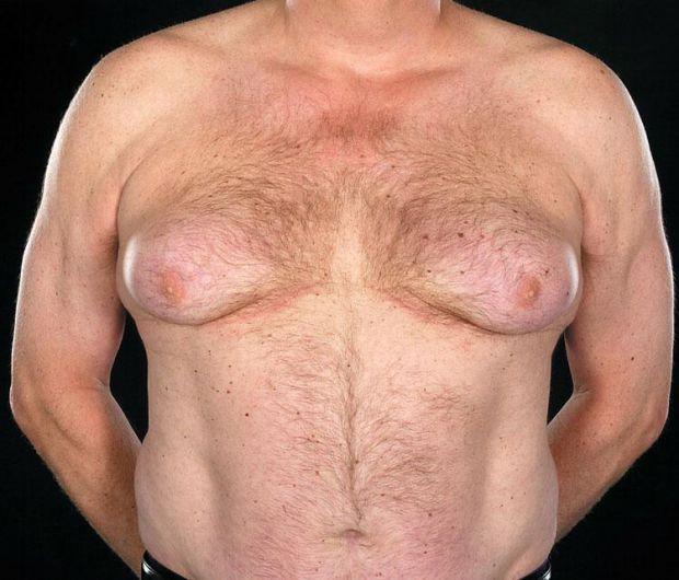 Гінекомастія — захворювання, що проявляється збільшенням у розмірах молочних залоз від 1 до 10 см у чоловіків, внаслідок розростання жирової або залоз