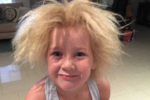 У вашого малюка неслухняне волосся? Зверніть увагу на форму волосини. Якщо вона трикутна або плоска, швидше за все, у дитини синдром неросчесаного вол