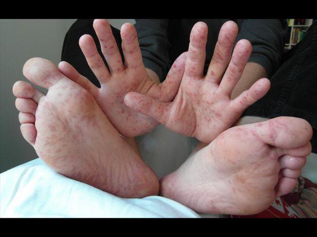 Вірус Коксакі - це інфекція, яка розмножується у шлунку і кишечнику людини.
