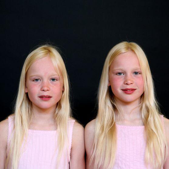 Батьки близнюків частіше розлучаються, залишаються без засобів до існування і стають безробітними - такі результати першого національного дослідження,