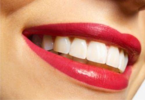 Відбілювання зубів нині дуже популярне, адже усі прагнуть бути схожими на голлівудських знаменитостей із їхніми чарівними усмішками. Хтось відбілює зу
