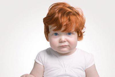 Дослідники з медичного центру імені Елізабет Ізраїльської в Бостоні виявили, що мутація гена MC1R, який обумовлює наявність рудого кольору волосся і с