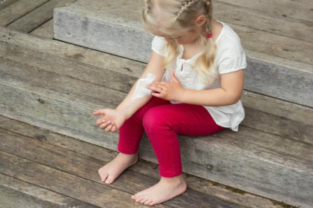Як проявляється алергія на порошок у дітей? Повідомляє сайт Наша мама.
